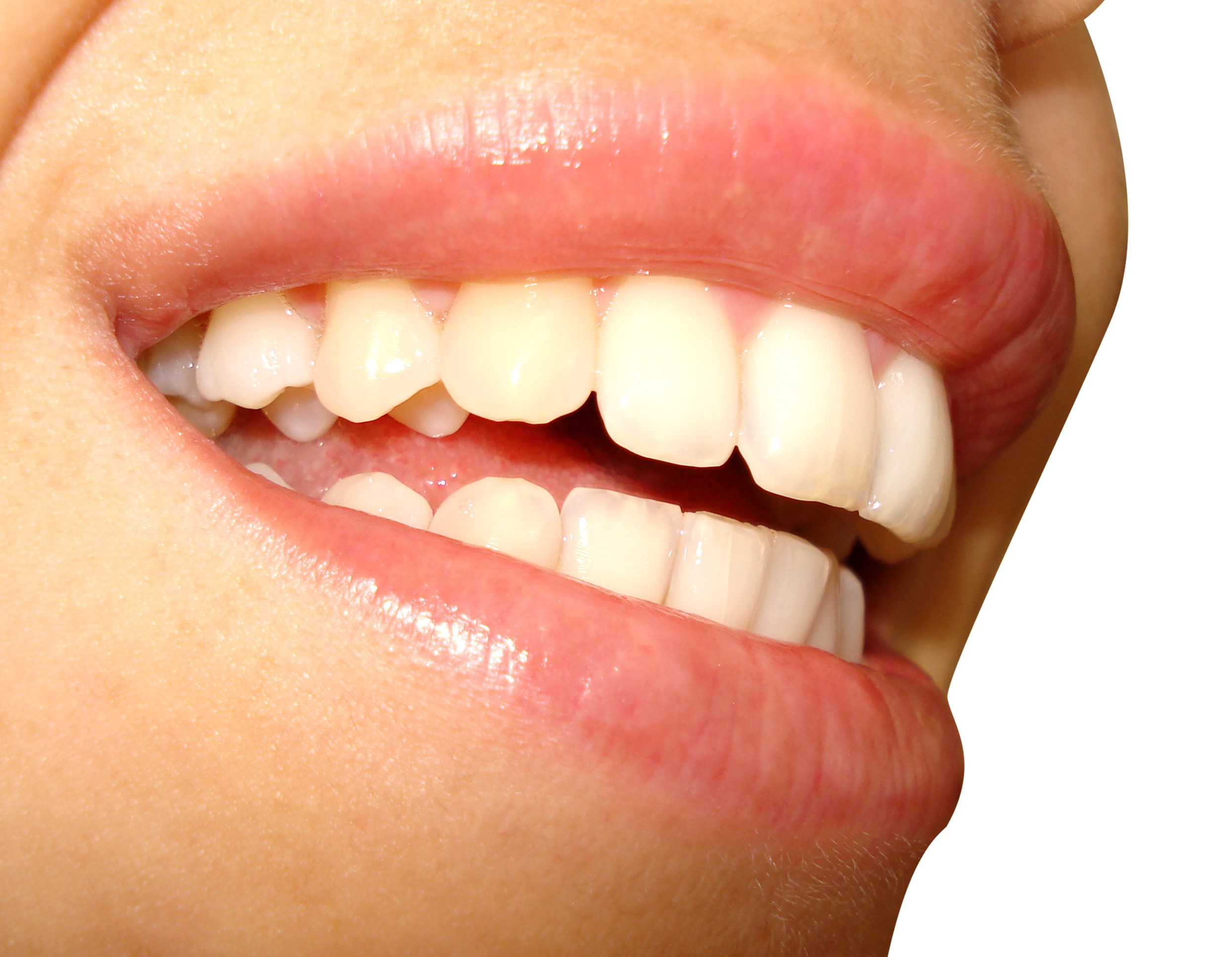 Spanish for Dentists: 6 Great (and Free!) Resources